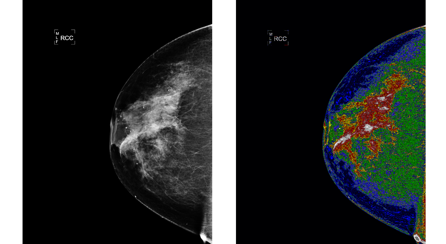 Original mammogram before MED-SEG processing (Left). Credit: Bartron Medical Imaging; and Mammogram, with region of interest (white) labeled (Right), after MED-SEG processing. Credit: Bartron Medical Imaging.